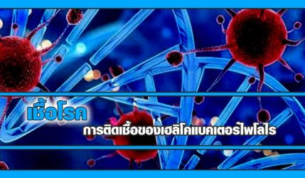 เชื้อโรค การติดเชื้อของเฮลิโคแบคเตอร์ไพโลไร