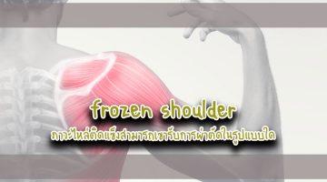 frozen shoulder ภาวะไหล่ติดแข็งสามารถเขารับการผ่าตัดในรูปแบบใด