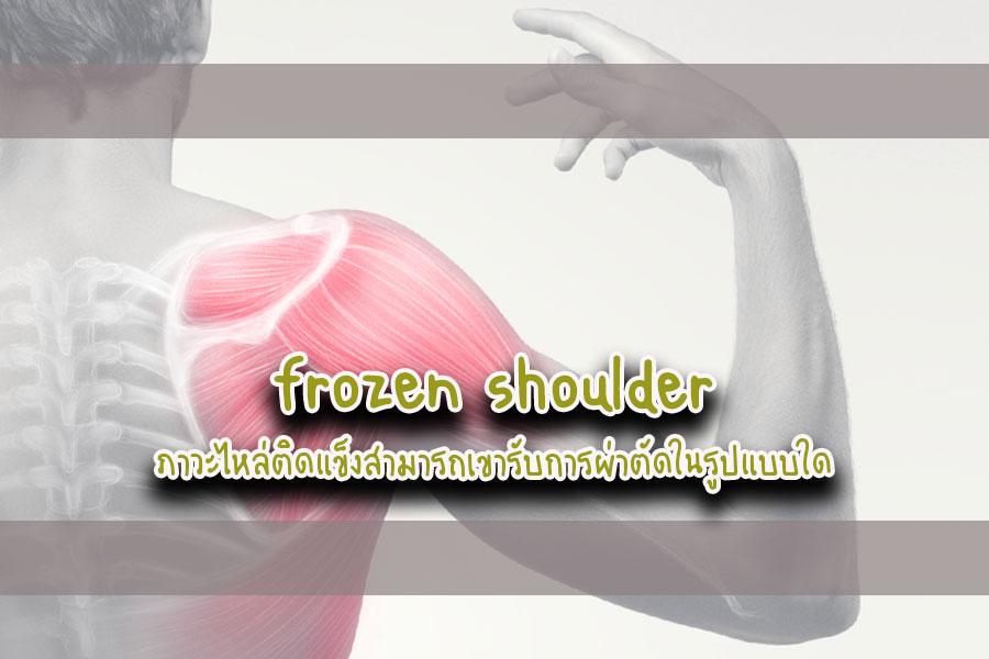 Frozen shouider